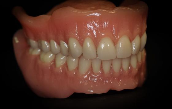 Laboratoire prothèse dentaire Charleroi