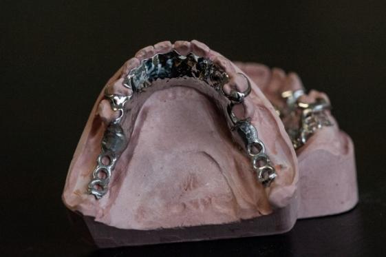 Prothésiste dentaire à Charleroi