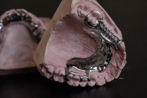 Appareils dentaires amovibles - Charleroi